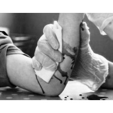 Article | How to Stop Bleeding | Managing Injuries in Martial Arts Training | By Thomas Richard Joiner